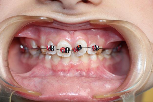 Стоматология и лечение зубов в Долгопрудном. Детская